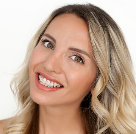 blonde woman smiling with braces