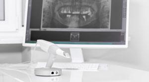 Oral Scanner